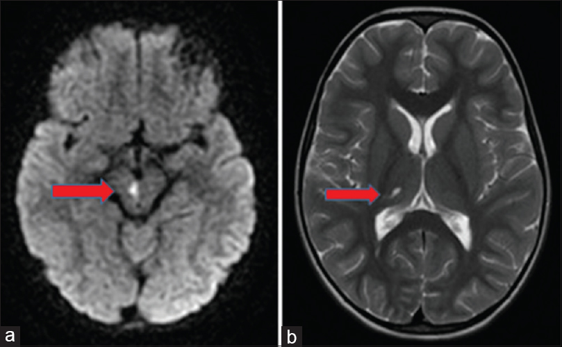 Figure 3: (a) Axial diffusion-weighted image showing acute infarction in the right aspect of cerebral peduncle (mid brain) in the area of the oculomotor and red nucleus. (b) Axial T2 weighted-image showing a chronic infarct in the right thalamus