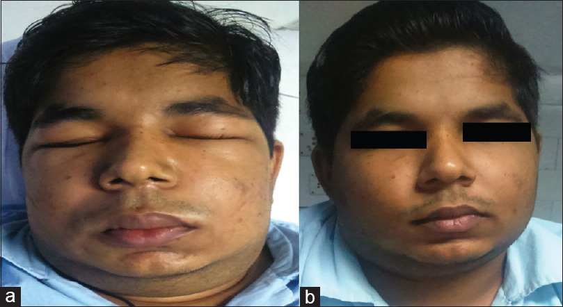 Figure 1: (a) Patient at presentation. (b) Patient after treatment.