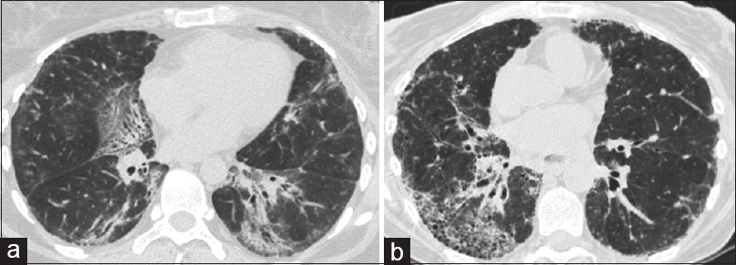 Newer insights into the management of interstitial lung