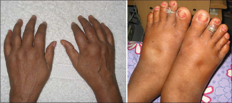 Figure 2: Swollen hand and feet syndrome are shown. Notice the arthritis of metacarpophalangeals and ankle joints with tenosynovitis