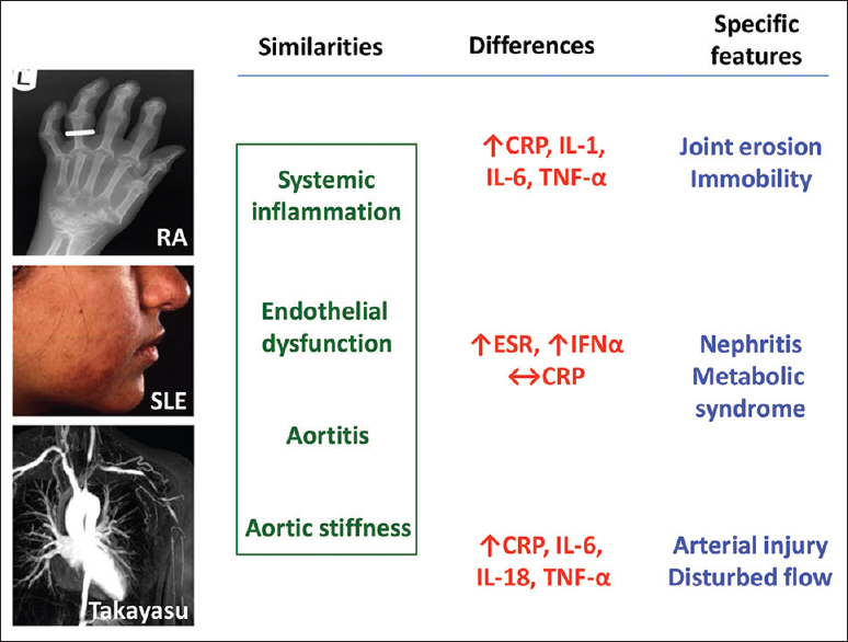 Figure 2: Shared and common features in systemic inflammatory diseases. Rheumatoid arthritis, systemic lupus erythematosus, and Takayasu arteritis are all associated with premature cardiovascular disease. Although they share disease features that may enhance cardiovascular risk, they also exhibit disease-specific pathology that is likely to be an important contributory factor. This might, in turn, influence the efficacy of individual biologic agents in terms of both primary disease control and protection against future cardiovascular events