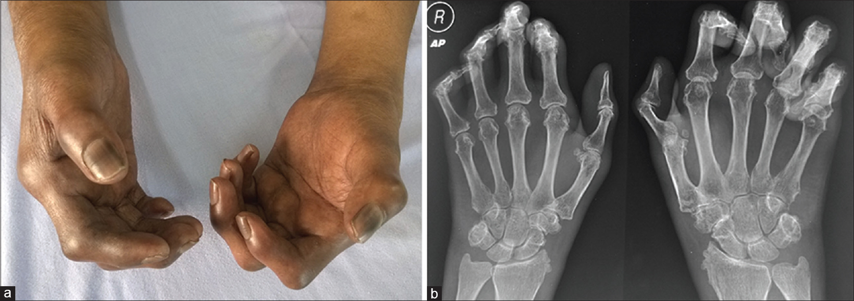 Figure 1: (a) Fingers of both the hands showing flexion contracture, darkly pigmented with swelling of the palmar fascia. (b) Hand radiographs posteroanterior view showing erosions in metacarpophalangeal, proximal interphalangeal, and distal interphalangeal joints with marked deformities