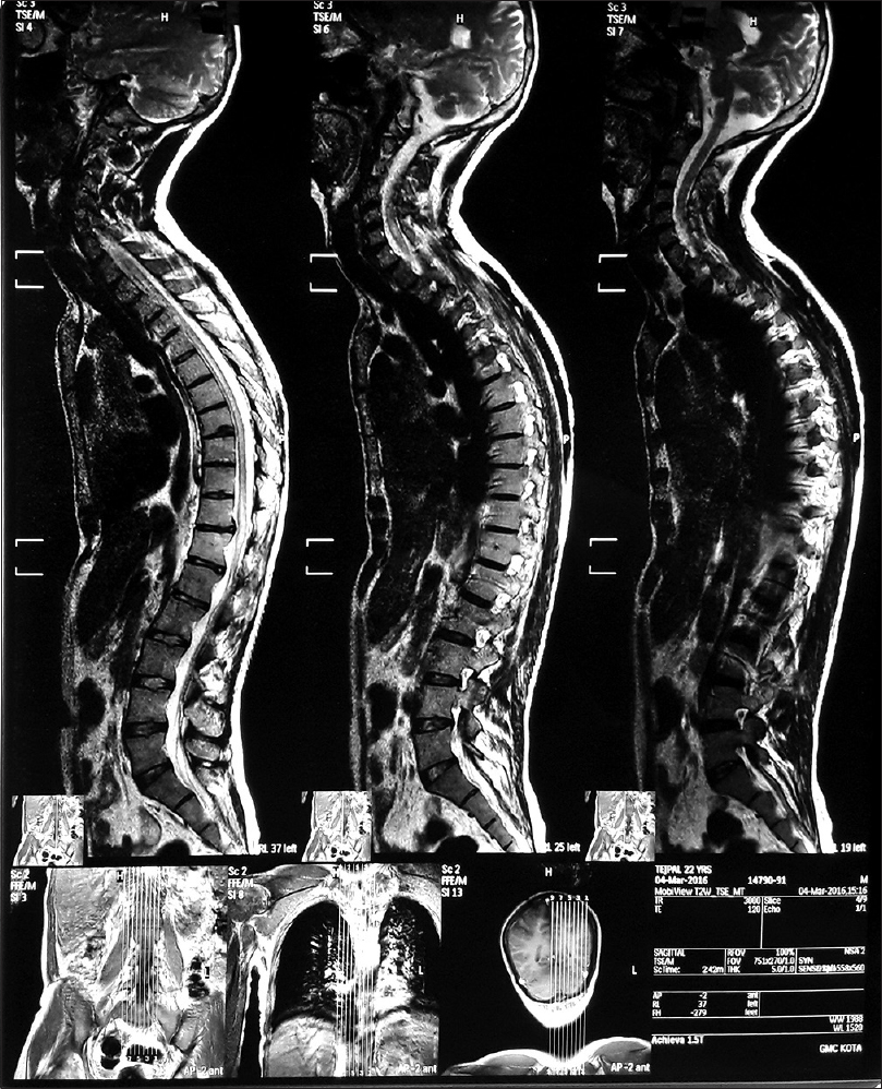 Figure 1: Magnetic resonance imaging spine T2-weighted showing cord hyperintensity in cervical and dorsal region extending from C5-D1 and D3-D12 with minimal expansion of lower cervical and mid-lower dorsal spinal cord