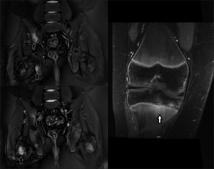 Figure 1: T2FS hyperintense signals involving bilateral sacroiliac joint (R>L) right inferior pubic ramus and bilateral neck of the femur (black arrow) Postcontrast enhancement noted involving the medial aspect of the right metaphysis of tibia extending into the growth plate and the epiphysis (white arrow)