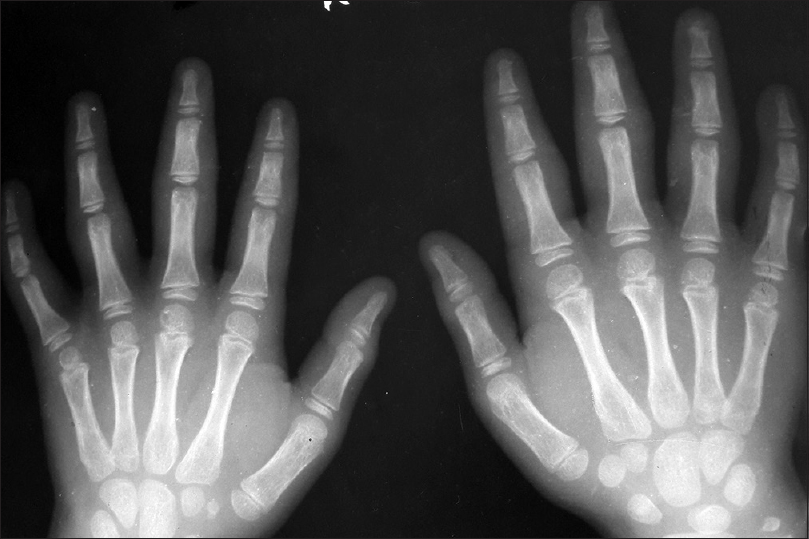 Figure 2: X-ray showing soft-tissue swelling only without involvement of bones or joints