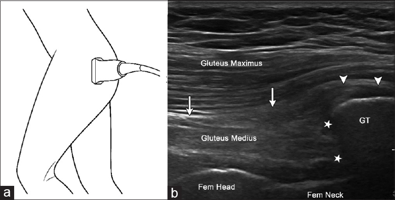 Figure 13: Vertically oriented transducer over greater trochanter. (a) Corresponding ultrasound image along the long axis of gluteus medius (arrows). (b) GT = greater trochanter, star = posterior fibers of gluteus medius (star) attaching to proximal greater trochanter, lateral fibers of medius attaching to lateral facet of greater trochanter (thin arrows)
