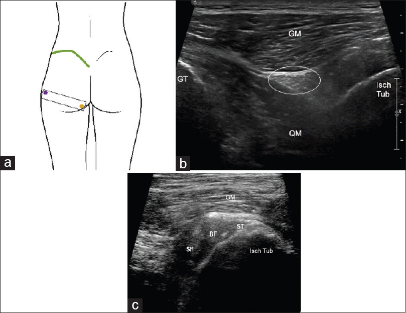 Figure 15: Posterior hip – placing the transducer (black rectangle) over the bony landmarks (a), GT = greater trochanter = blue dot, isch tub = ischial tuberosity = yellow dot. Corresponding transverse ultrasound image (b) demonstrating GT, isch tub, and sciatic nerve. Blown up image of ischial tuberosity (c) showing hamstrings attachment over the ischial tuberosity (c) GM = gluteus maximus, QF = quadratus femoris, Circle = sciatic nerve, ST = semitendinosus, SM = semimembranosus