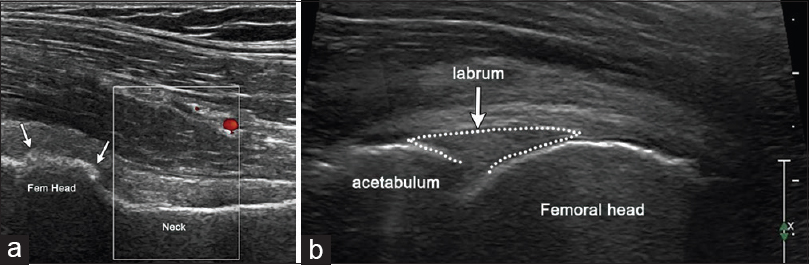 Figure 5: (a) Transducer placed along the long axis of the femoral head and neck shows the osteophyte formation at the distal femoral head (block arrows) indicating osteophyte formation at the distal femoral head (block arrows) indicating osteoarthritis. (b) Imaging along the long axis of the femoral neck at the level of the femoral head demonstrating the cortical outline of the acetabulum and echogenic fibrocartilage labrum, outlined by dotted line (thin arrow)