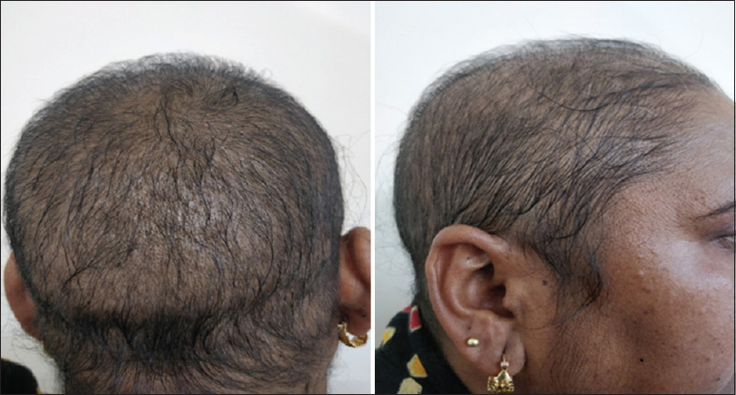 Figure 3: Reversal of alopecia after stopping azathioprine (on 2-month-follow up)