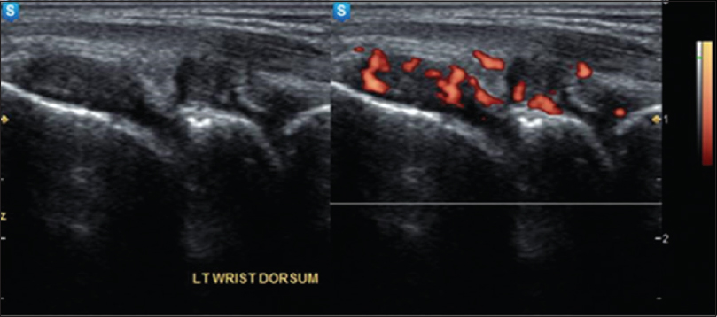 Figure 1: Mild synovial thickening in the dorsal aspect of left wrist joint with mild articular margin erosions