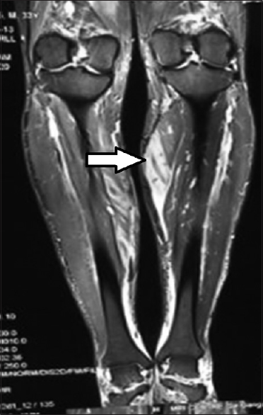 Figure 2: Magnetic resonance imaging of left thigh and calf muscles showing hyperintense signals in multiple muscles predominantly in medial head of gastrocnemius (white arrow) with thin layer of fluid around muscles with the possibility of inflammatory myositis