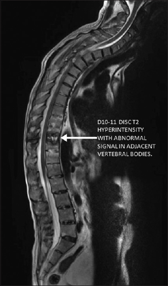 Figure 2: Magnetic resonance imaging revealing D10–11 disc T2 hyperintensity with abnormal signal in adjacent vertebral corpus